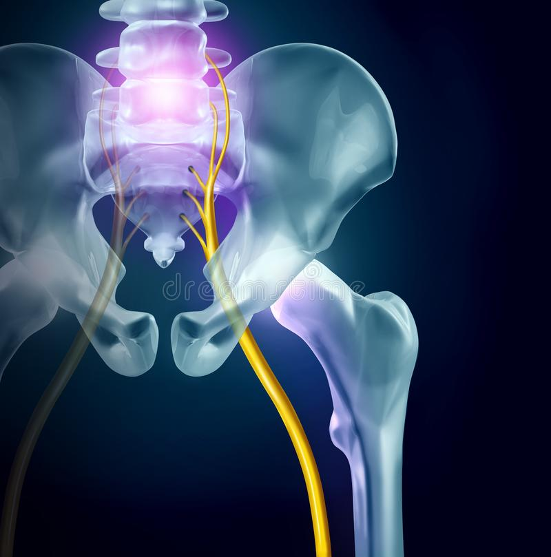 Sciatica Pain Concept. Sciatica pain symptoms and diagnosis medical concept as a disease causing physical problems with 3D illustration elements stock illustration