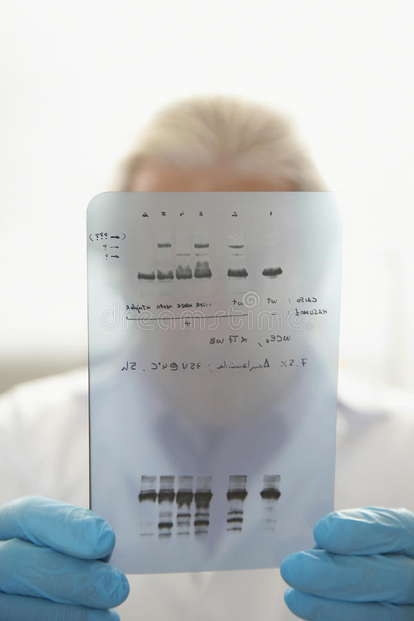 Closeup Of Scientist Looking At DNA Test Results Stock Photo