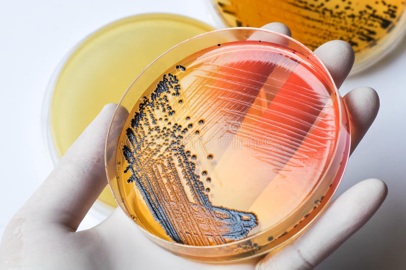 Scientist's hand in latex glove holding the bacteria growing pet royalty free stock photos