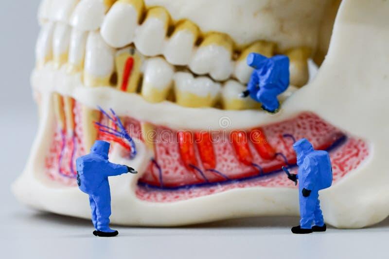 Scienziato miniatura della gente sul lavoro con il modello dentario del dente immagini stock libere da diritti