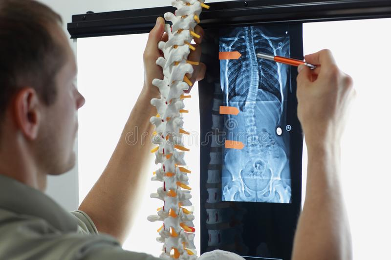 Scoliosis. Case study.Diagnosis,treatment planning royalty free stock photography