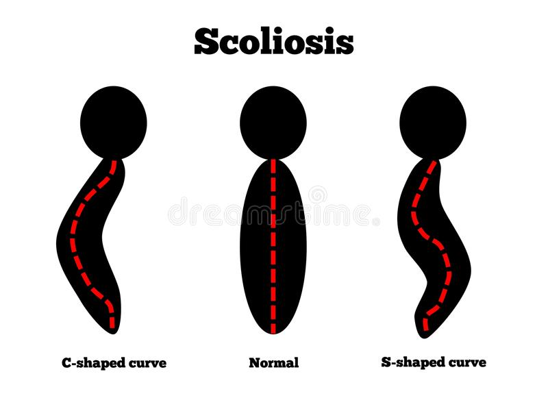 Scoliosis. Different types of curvatures caused by scoliosis stock illustration
