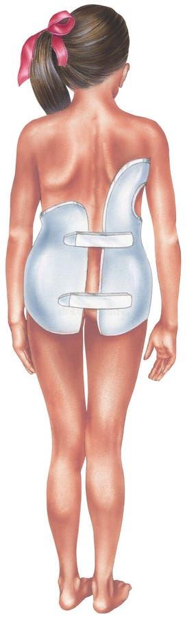 Scoliosis - ung flicka i ett ryggrads- stag royaltyfri illustrationer