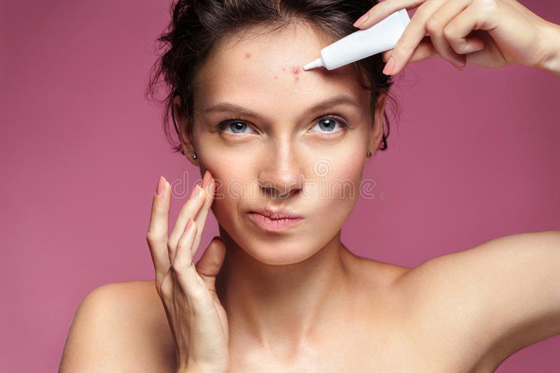 Scowling girl pointing at her acne and applying treatment cream. stock photos