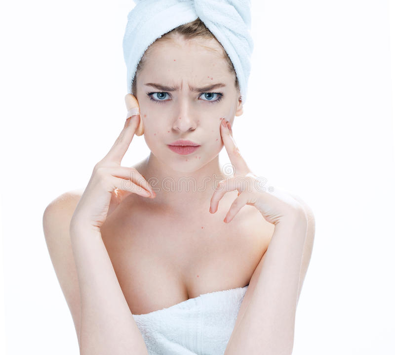 Scowling girl pointing at her acne with a towel on her head. royalty free stock photography