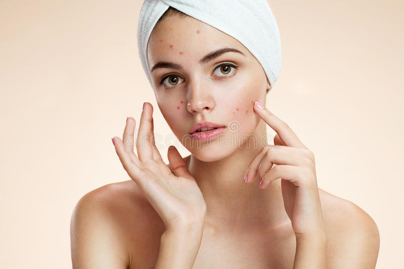 Scowling girl pointing at her acne with a towel on her head. Woman skin care concept royalty free stock photography