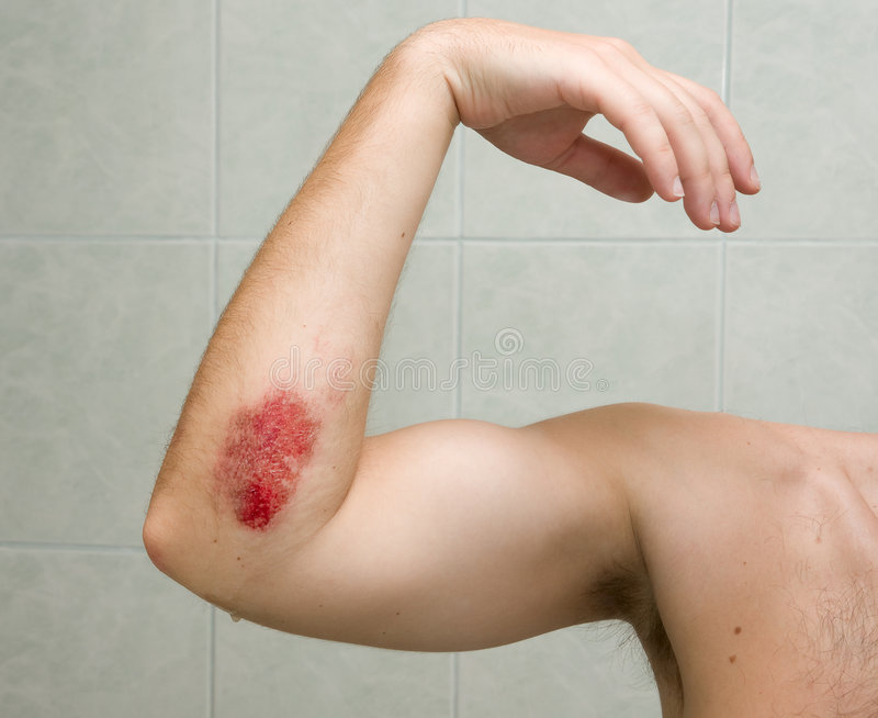 Scraped elbow #1. Scraped elbow - the result of inline skating accident. The fresh wound is covered with antibacterial gel stock photography