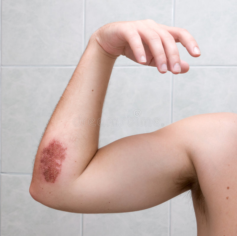 Scraped elbow - 5 days after accident. Scraped elbow - 5 days after inline skating accident. The wound is healing well, there is almost no inflammation royalty free stock photos