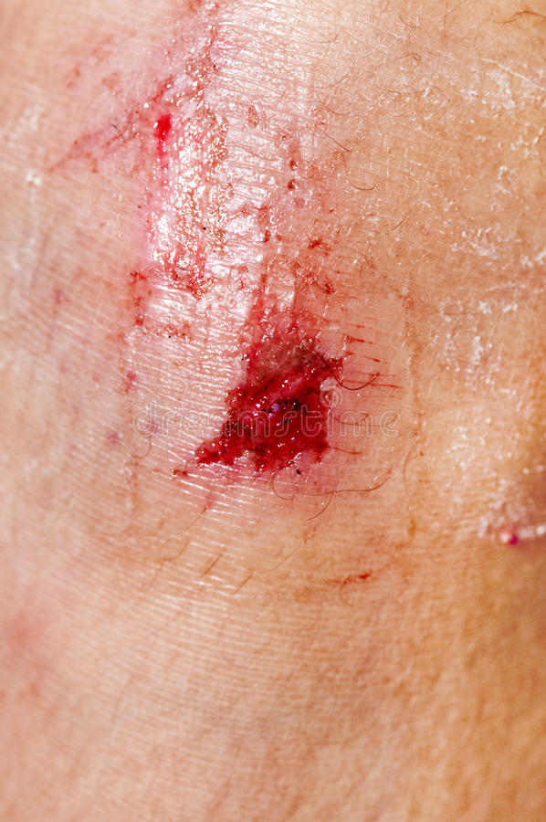 Scraped Knee royalty free stock photography