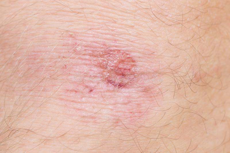 scraped knee royalty free stock images