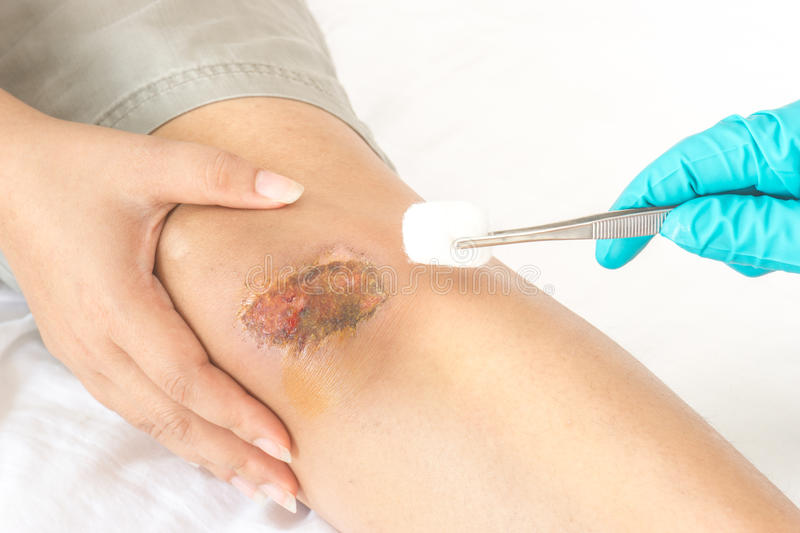Scraped knee. First aid Scraped on knee royalty free stock photography