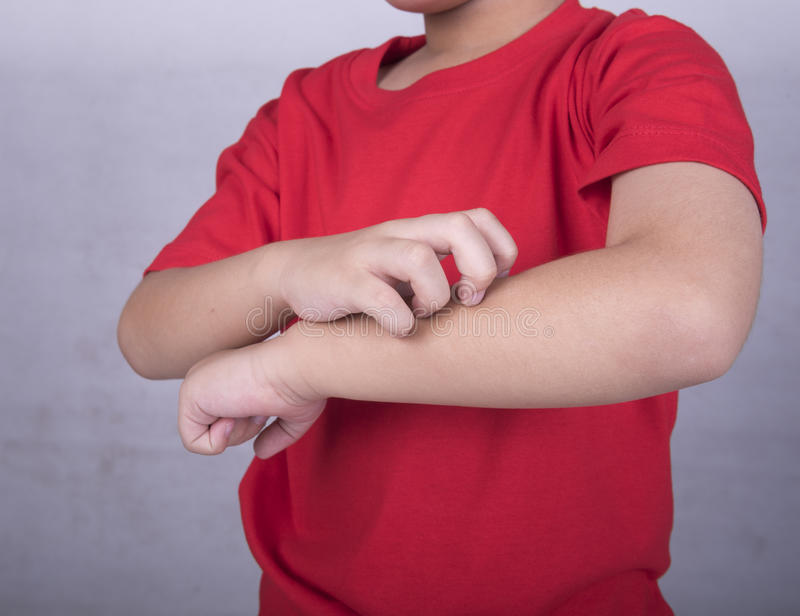 Scratch the itch. Children scratch the itch with hand. Concept photo with Healthcare And Medicine royalty free stock photos