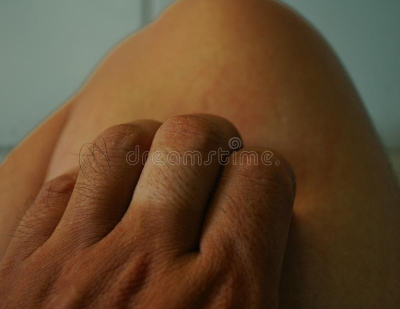 Scratching the leg caused by itching stock photos