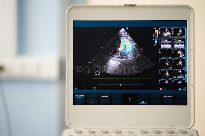 Monitor of modern ultrasound scanner with heart scan. On the screen of the modern ultrasound scanner, the image of the right ventricular outflow tract with stock images