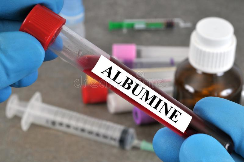 Screening of albumin in the blood. Blood tube with albumin written in French on it stock images