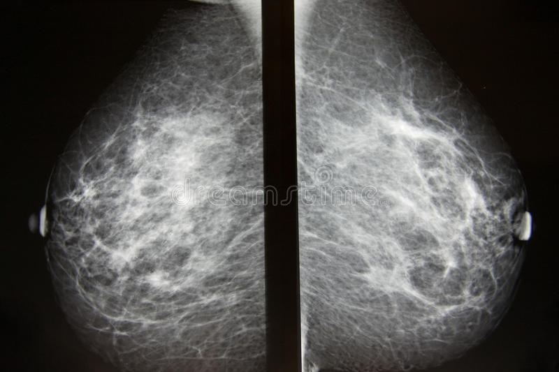 Screening For Breast Cancer Royalty Free Stock Image