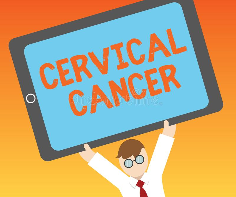 Scrittura della nota che mostra Cancro cervicale Montrare della foto di affari accade quando le cellule della cervice si sviluppa illustrazione di stock