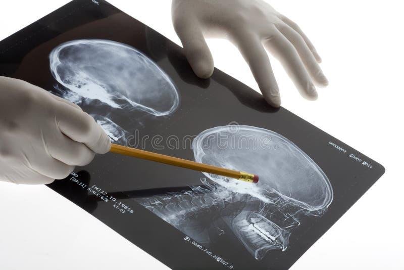 Scullröntgenstrahl lizenzfreies stockfoto