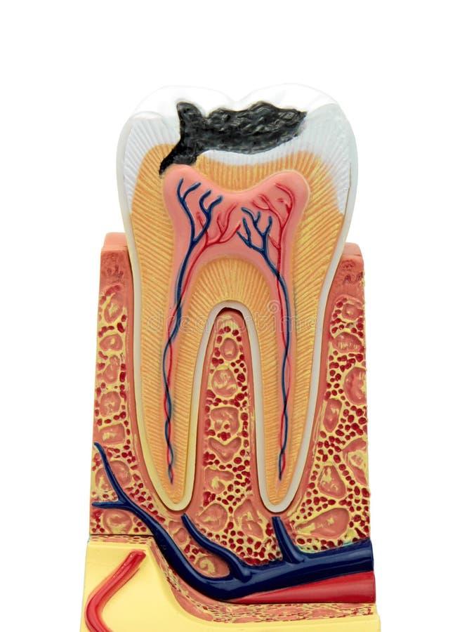 Seção transversal de um modelo anatômico do dente fotografia de stock royalty free