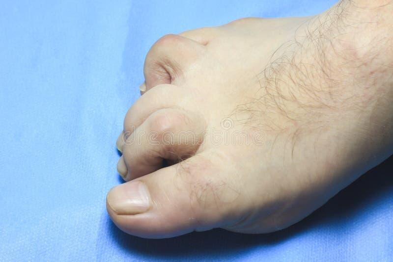 Se deforma el dedo del pie la gente es discapacitada el finger está muy dolorido fotografía de archivo