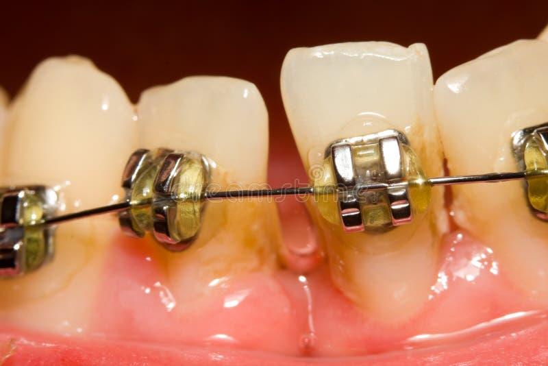 Se fermer de l'intervalle avec les supports dentaires photo stock