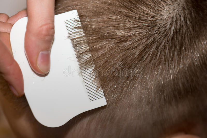 Searching for lice on a childs head. With a white comb stock image