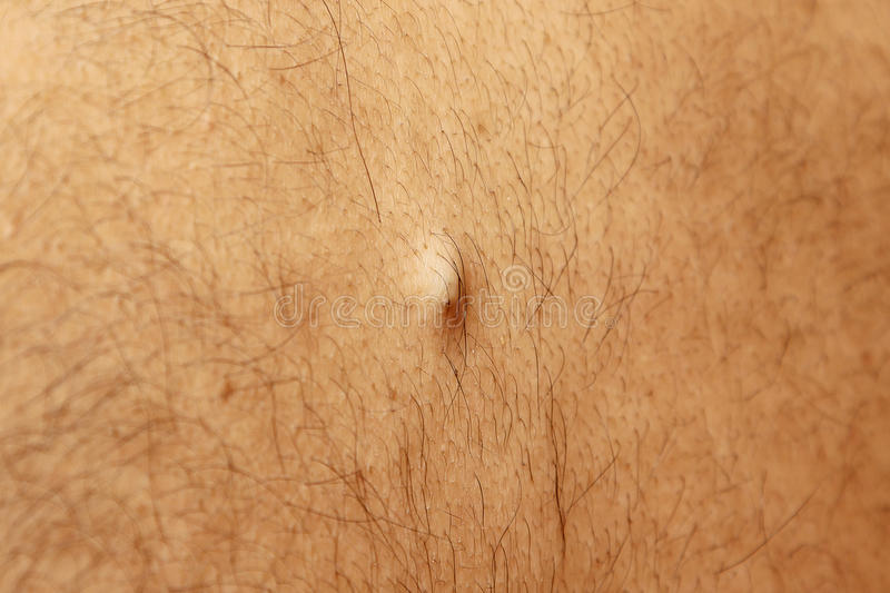 Sebaceous Cyst On The Back Of The Male Stock Image Image