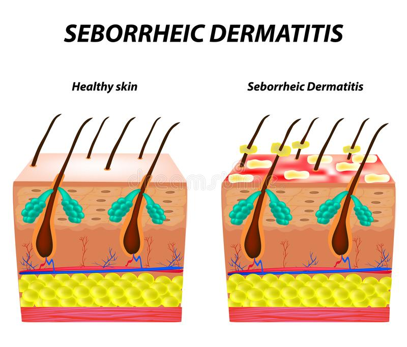 Seborrhea włosy i skóra Dandruff seborrheic dermatitis egzema Dysfunkcja łojowi gruczoły Podżegająca skóry choroba ilustracja wektor