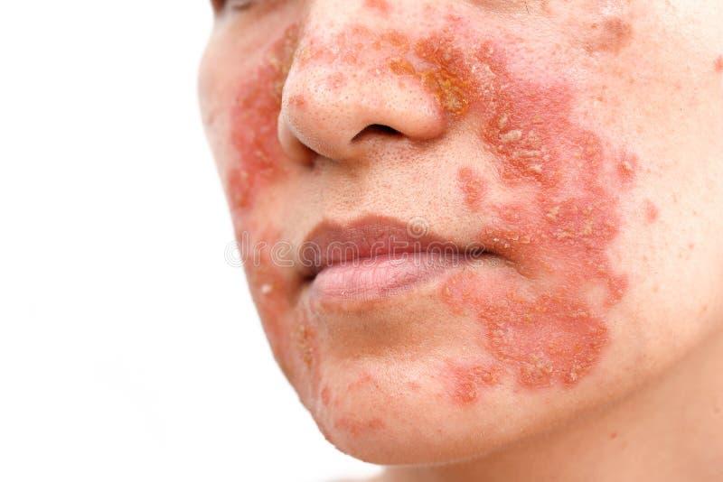 Seborrheic πρόσωπο δερματίτιδας στοκ εικόνες