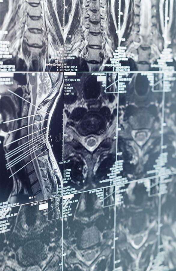 Sectioneel tomographic beeld in medische onderzoek stock afbeelding