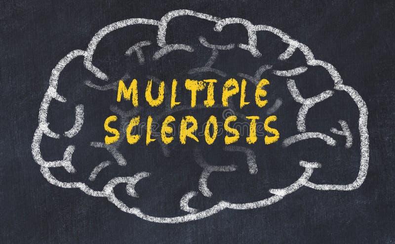 Segni il disegno col gesso del cervello umano con la sclerosi a placche dell'iscrizione immagine stock