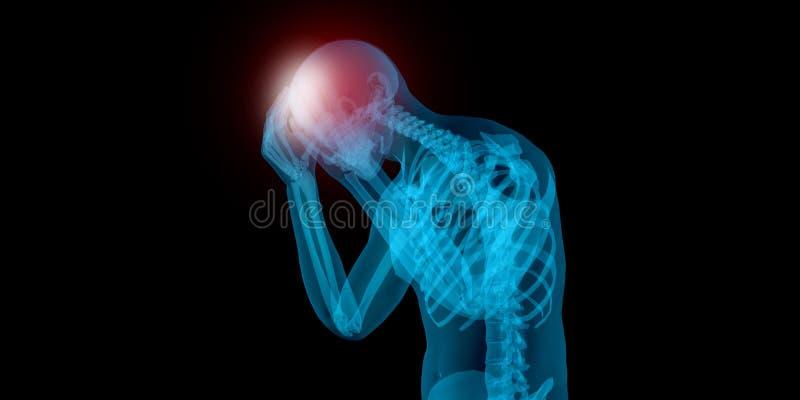 Sehr ausführliche Illustration 3D eines Mannes mit Kopfschmerzen lizenzfreie abbildung