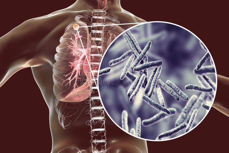 Sekundär tuberkulos i lungor och närbildsikt av bakterier för Mycobacteriumtuberkulos vektor illustrationer