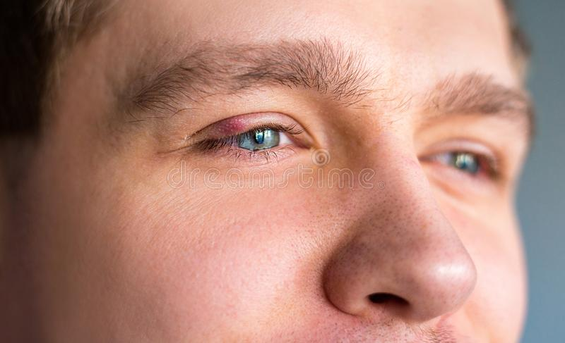 Selective focus on swollen and painful red upper eye lid with onset of stye infection due to clogged oil gland and. Staphylococcal bacteria royalty free stock images