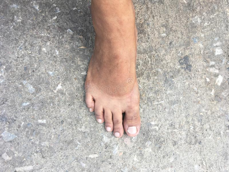 Mark of sunburn on bare foot after takeing shoes off. Selfie bare feet standing on concrete street. Mark of sunburn on bare foot after takeing shoes off royalty free stock image