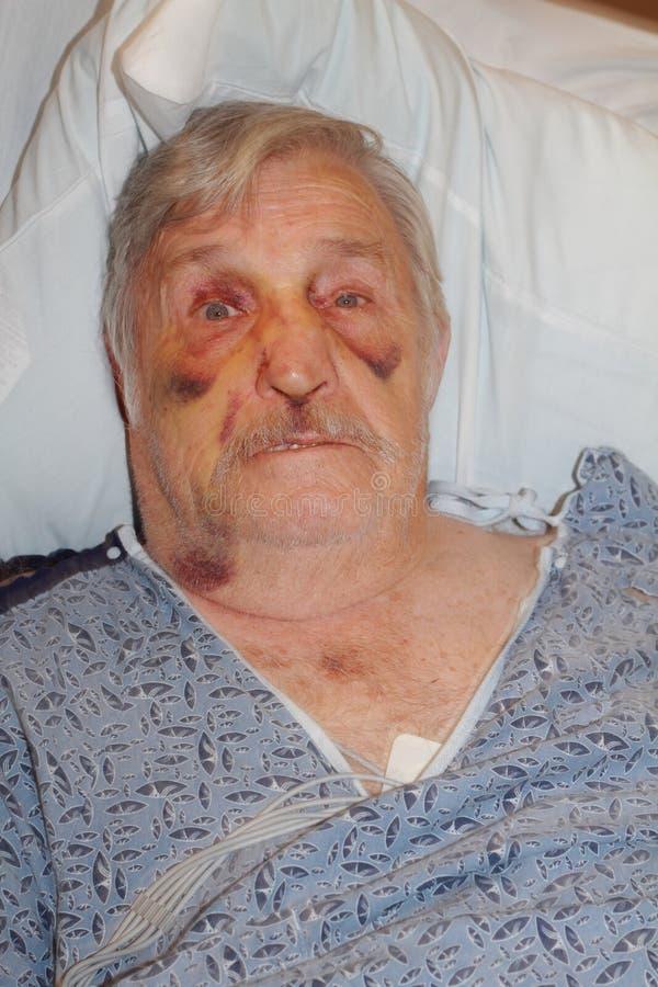 Selfie d'hôpital d'homme supérieur photographie stock libre de droits
