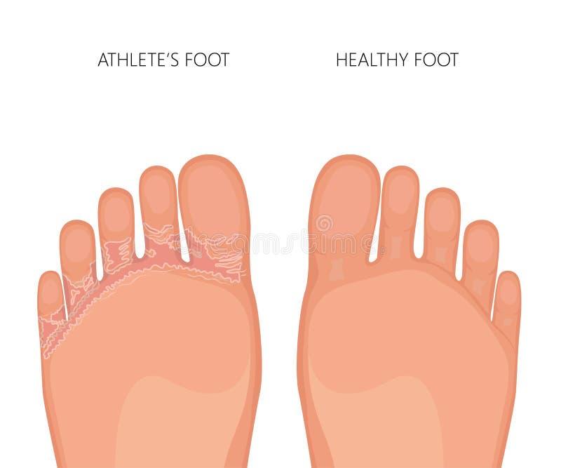 Semelles de pedis de pied ou de tinea d'athlètes des pieds illustration libre de droits
