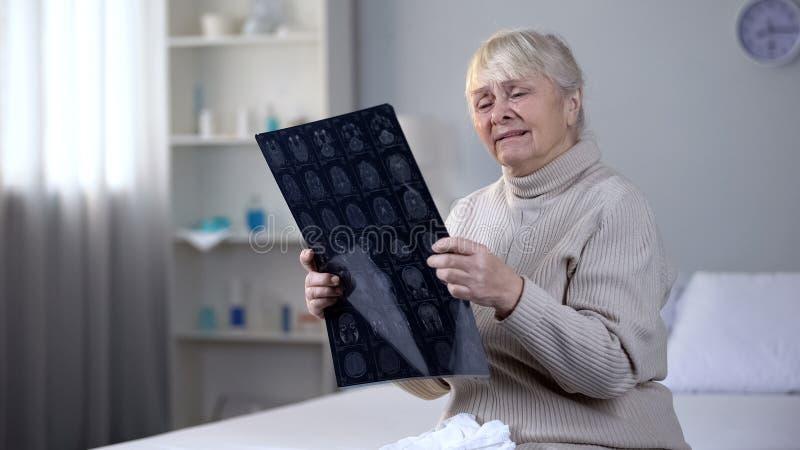 Senhora idosa comprimida que olha o raio X do c?rebro e que grita, doen?a incur?vel, sa?de fotografia de stock royalty free