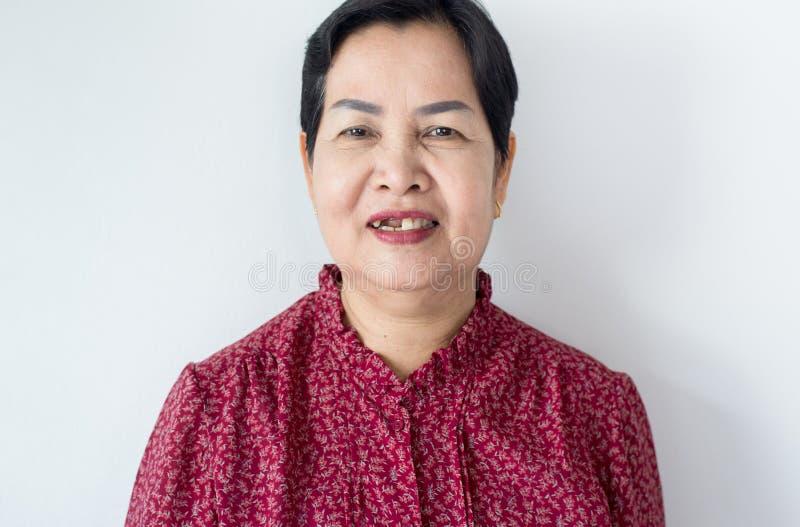 Senior Asian woman with broken tooth,Dental prosthesis,False teeth. Senior Asian women with broken tooth,Dental prosthesis,False teeth royalty free stock photos