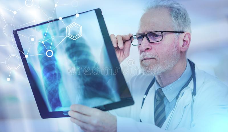 Senior doctor looking at x-ray; multiple exposure. Senior doctor looking at x-ray in clinic; multiple exposure royalty free stock photos