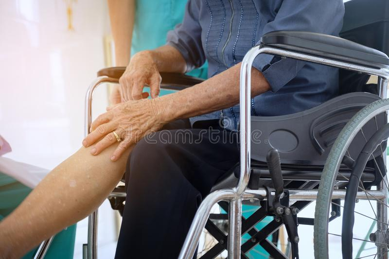 Senior or elderly old lady woman patient show her scars surgical. Total knee symptoms joint sitting in wheelchair nursing hospital suffers from knee pain stock photography