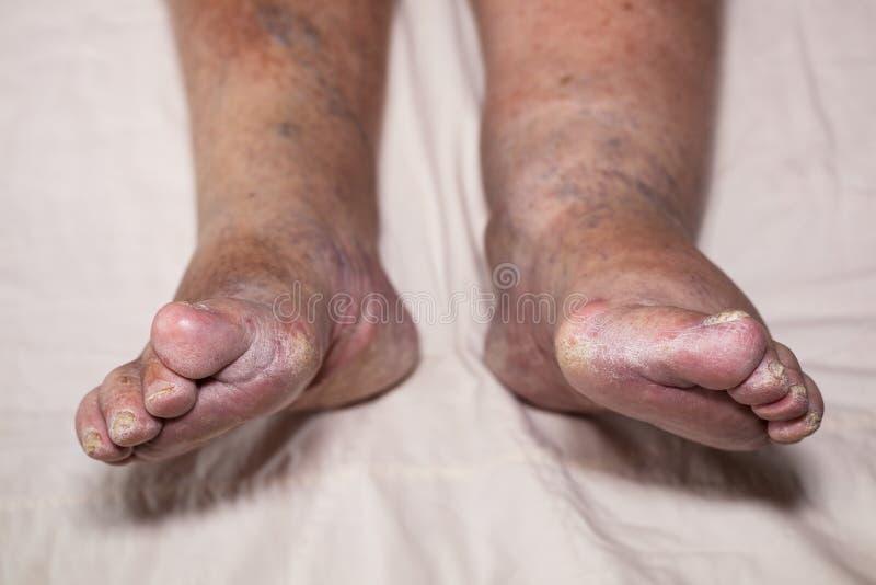 Senior leg problems royalty free stock images