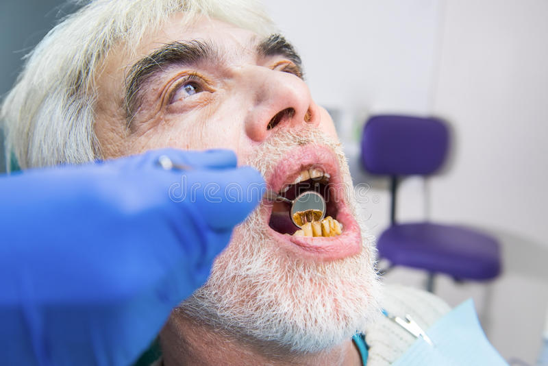 Senior man with bad teeth. Senior men with bad teeth. Hand holding dental mirror. How to cure caries royalty free stock photography