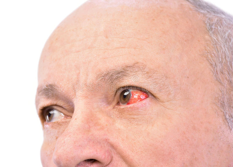 Senior man with irritated red bloodshot eye. On a white background royalty free stock photo