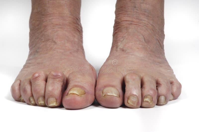 Senior woman foot stock images