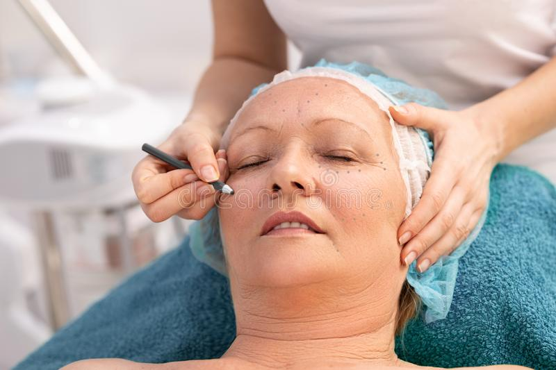 Senior woman laying on back during procedure of preparing for facial surgery. At beauty clinic. Doctors hand drawing correction line on her face.   Doctor and stock photo