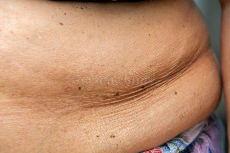 Older ladies fat 15 Photos