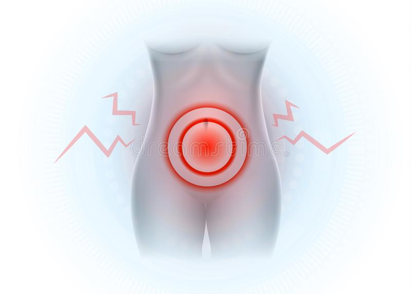 Senken Sie Bauchschmerzen vektor abbildung