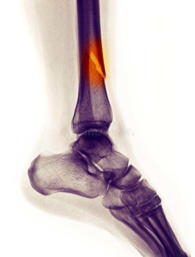 Senken Sie den Fahrwerkbeinröntgenstrahl, der einen Bruch zeigt lizenzfreies stockbild