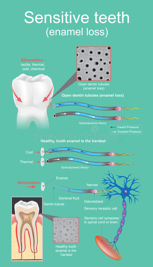 Sensitive dental. Sensitive dental is defined as intense and transitory pain that is cause by the exposure of the dentin. Vector graphic design royalty free illustration
